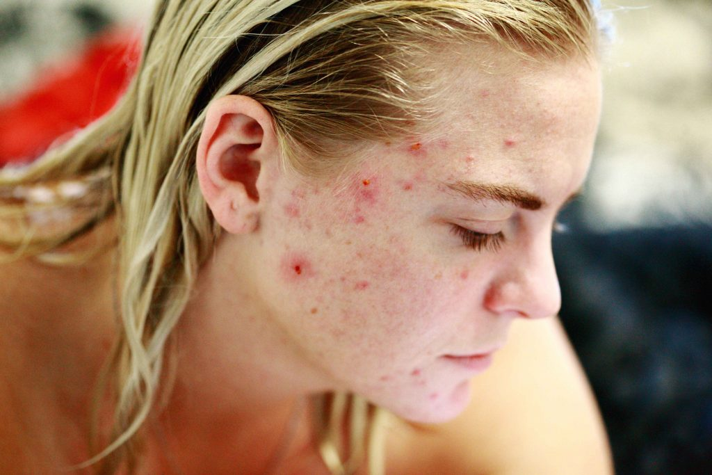 Image of face with acne