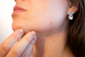 Image of face with acne Tranquility Skin Care