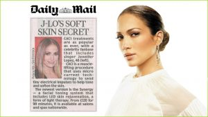Image of Caci non-surgical Face Lift